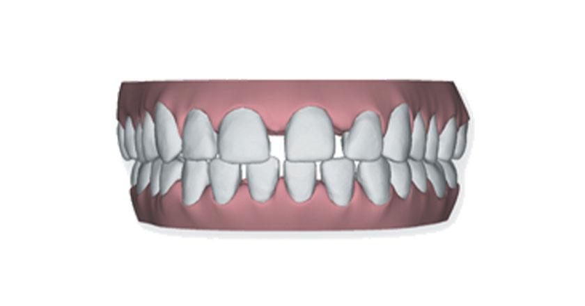 invisalign herausnehmbare zahnspange praxis illner kieferorthopaedie invisalign gebiss 1