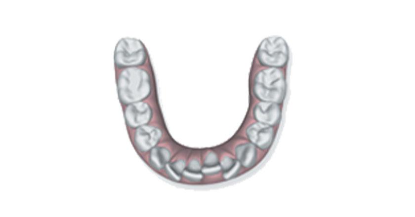 invisalign herausnehmbare zahnspange praxis illner kieferorthopaedie invisalign gebiss 2