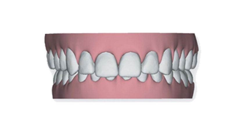 invisalign herausnehmbare zahnspange praxis illner kieferorthopaedie invisalign gebiss 3