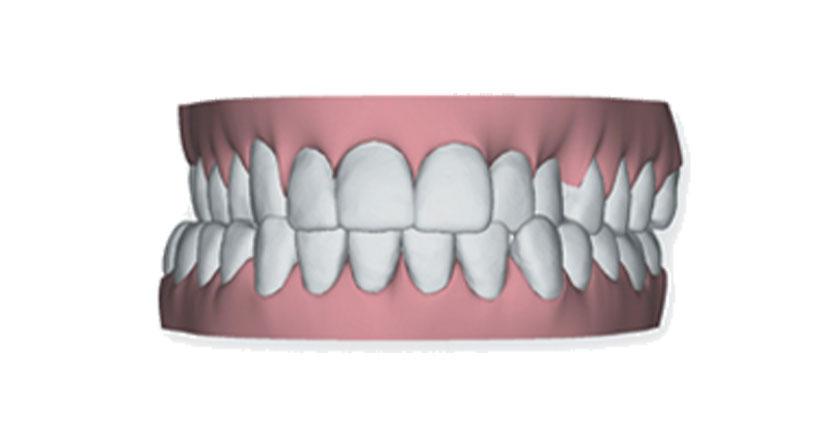 invisalign herausnehmbare zahnspange praxis illner kieferorthopaedie invisalign gebiss 4
