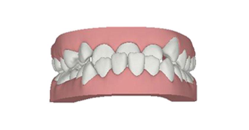 invisalign herausnehmbare zahnspange praxis illner kieferorthopaedie invisalign gebiss 5